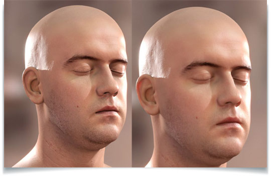 Real-Time Realistic Skin Translucency and Screen-Space